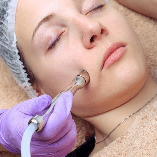 Diamond Peel Facial by Skin Health Aesthetics